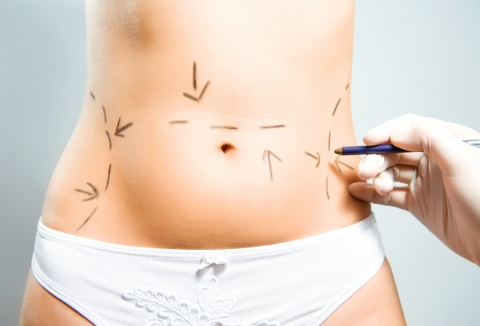 Drawing marks for abdominal plastic surgery